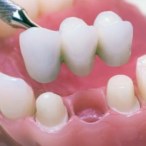 dental-bridge-featured