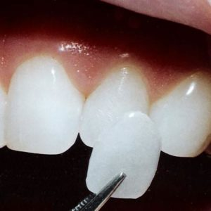 veneers-featured
