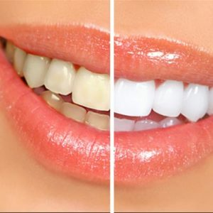 whitening-featured
