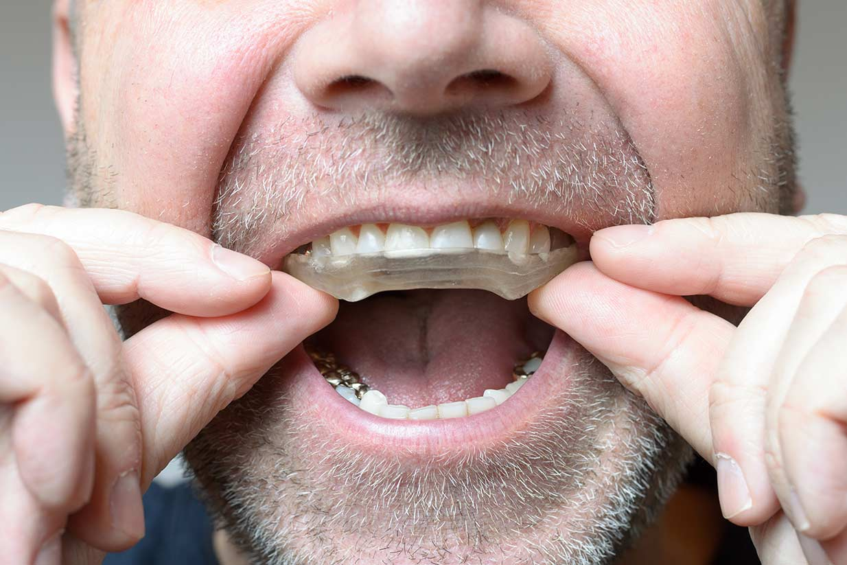 Bruxism Teeth Grinding | Welcome Smile Dental | Calgary Dentist