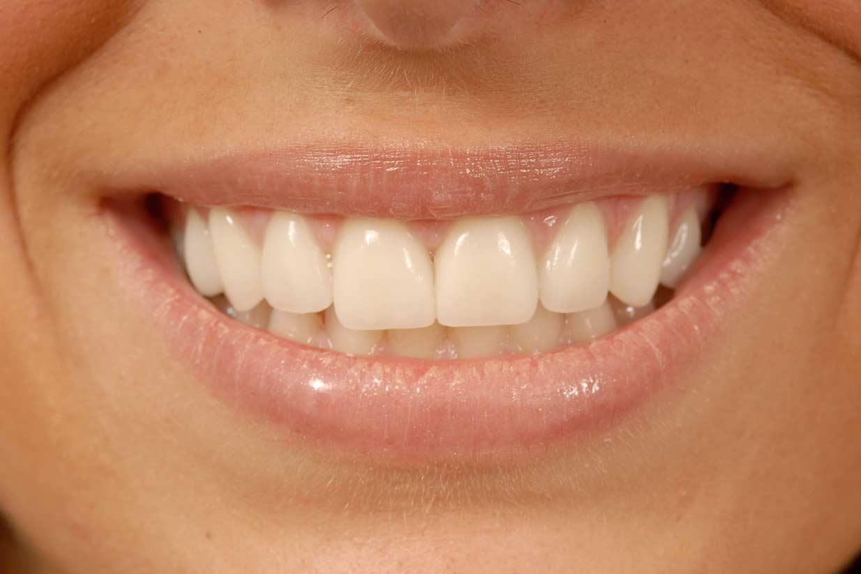 Cosmetic Dentistry Smile   Welcome Smile Dental   Calgary Dentist