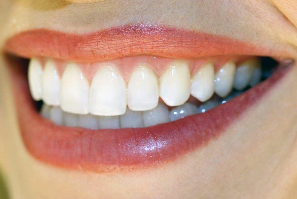 Beautiful Smile | Welcome Smile Dental | Calgary Dentist