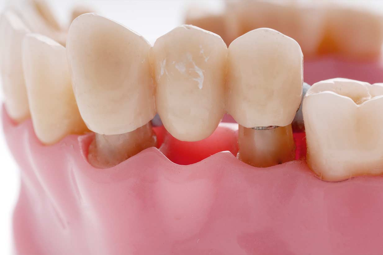 Dental Bridge | Welcome Smile Dental | Calgary Dentist