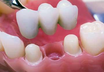 Welcome Smile Dental | Dental Bridges