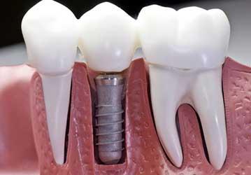 Welcome Smile Dental | Dental Implants