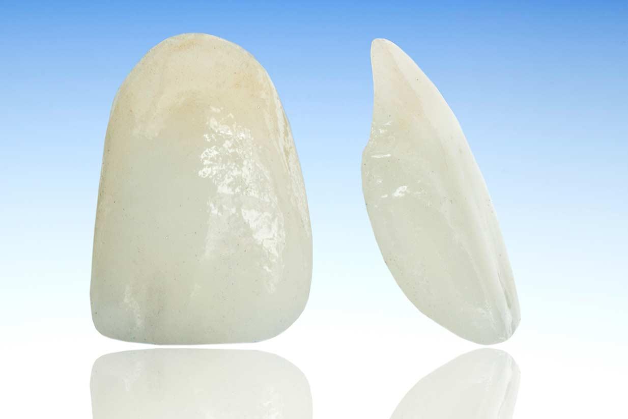 Porcelain Veneers | Welcome Smile Dental | Calgary Dentist