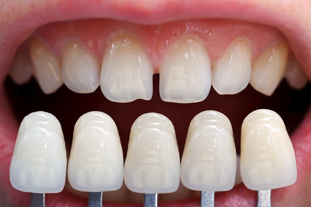 Porcelain Veneers | Welcome Smile Dental | Calgary Dentist