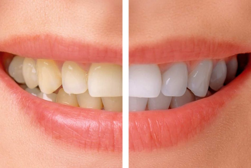 Teeth Whiteing | Welcome Smile Dental | Calgary Dentist