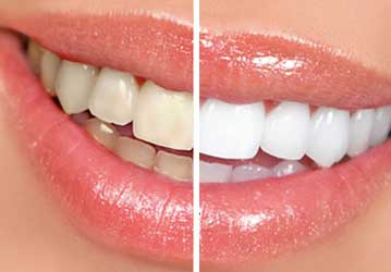 Welcome Smile Dental | Teeth Whitening